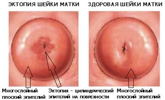 Los dolores en todo el cuerpo a la osteocondrosis