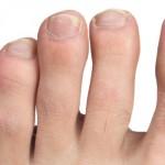 Лучшие средства от грибка ногтей на ногах и руках