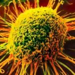 Какой вид рака самый опасный
