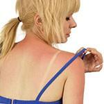 Солнечные ожоги: первая помощь и лечение
