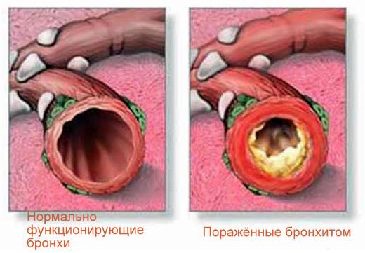 Быстрое лечение кашля в домашних условиях народными средствами